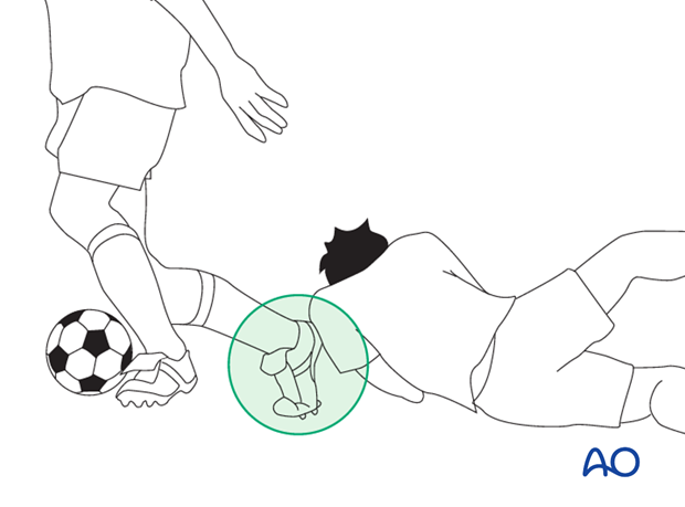 Mechanism of the injury