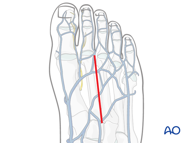 Make a longitudinal incision between the second and the third metatarsal