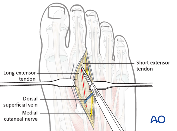 The approach to the dorsal aspect of the metatarsal is made in such a way as to protect the intermetatarsal nerves and the...