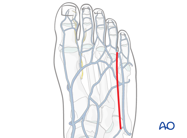 Make a longitudinal incision along the dorsolateral aspect of the 4th metatarsal, ...