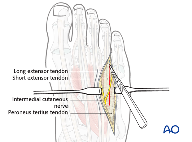 The base of the fourth metatarsal is best reached by going lateral to the long extensor to the little toe.