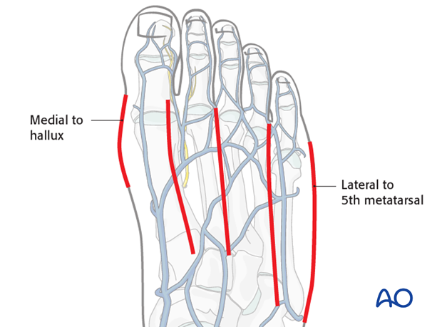 Multiple specific sites in the foot are better approached through separate incisions...