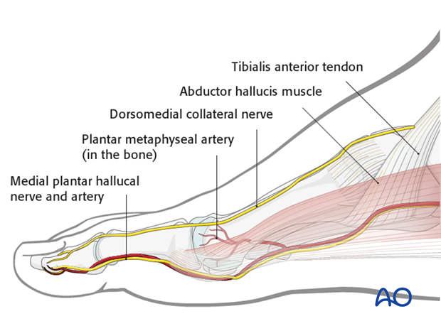 The courses of the dorsomedial collateral nerve (usually the superficial peroneal nerve), and the medial plantar hallucial...
