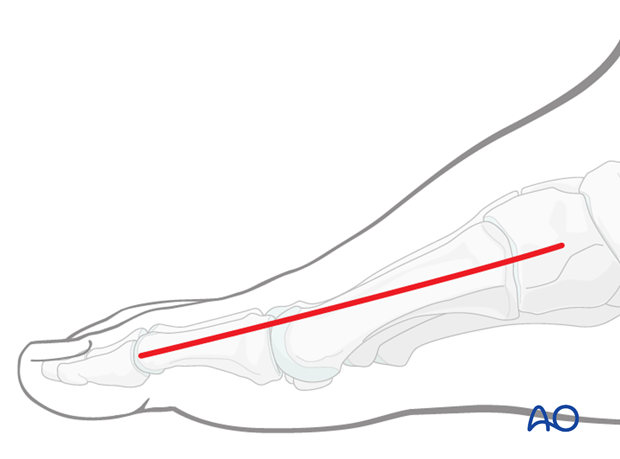 medial approach to the first metatarsal