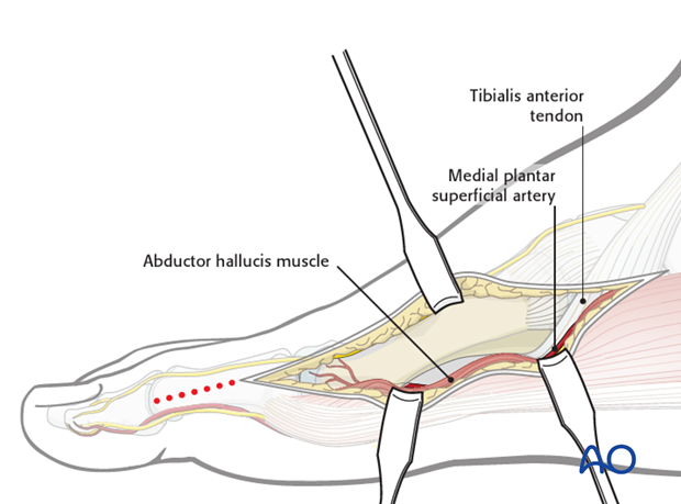 Find the dorsal edge margin of the abductor hallucis muscle and retract it plantarwards.