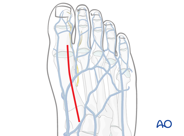 dorsal approach to the first metatarsal
