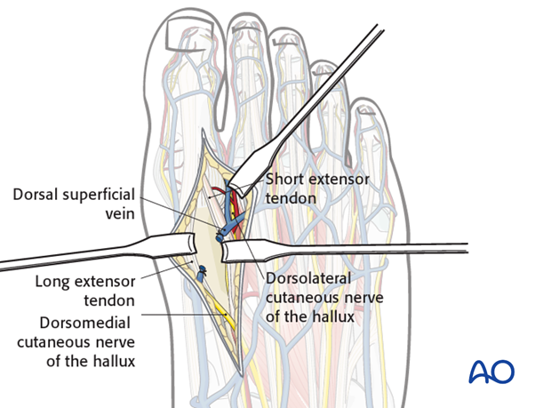Expose the first metatarsal between the tendons of extensor hallucis longus and hallucis brevis.|alt