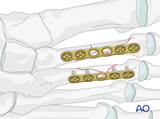 2nd 4th diaphyseal fractures