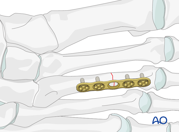 A transverse fracture requires compression-plate fixation.