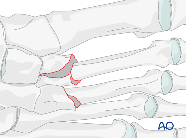 Proximal metaphyseal fracture of the metatarsals 2 and 3