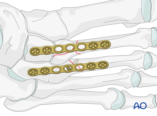 A dorsal plate can be attached proximally to the cuneiform, and bridge across the proximal...