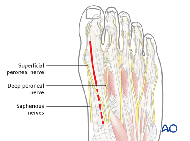 dorsal approach to the first metatarsal phalangeal joint mtpj