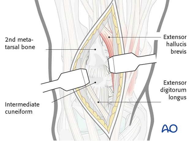dorsal approach to the midfoot and the metatarsals