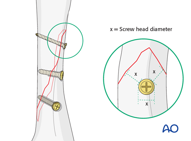 Do not insert screws too close to the fracture.