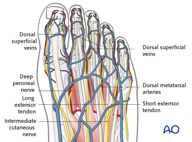 The veins are superficial and should be preserved, especially those which run longitudinally in the long axis of the toe.