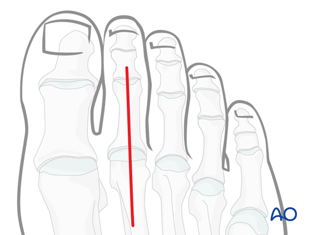 dorsal approach to the proximal phalanx