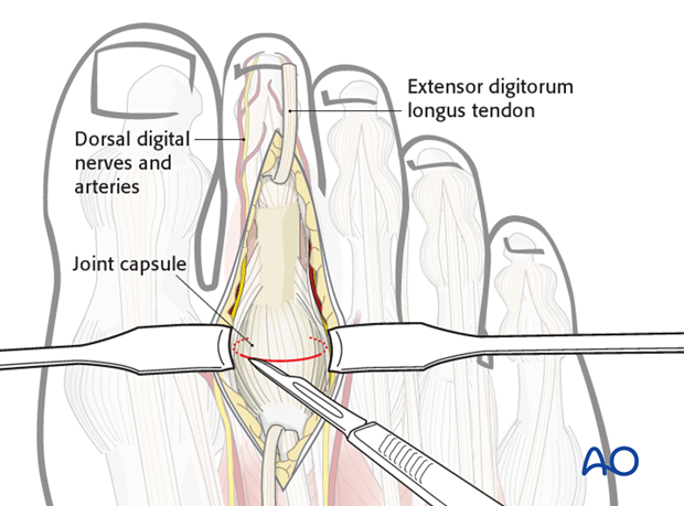 Retract the cut tendon and expose the capsule.