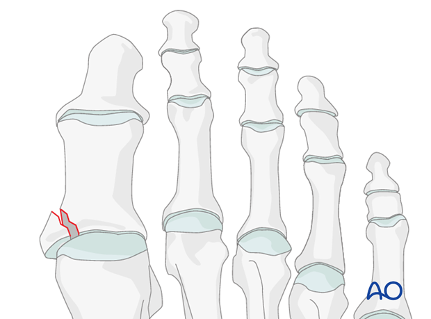 Hallux - Intraarticular partial shear fracture of the proximal phalanx