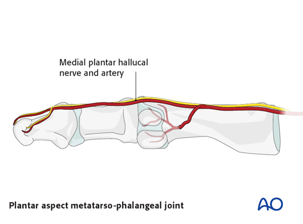 medial approach to the hallux