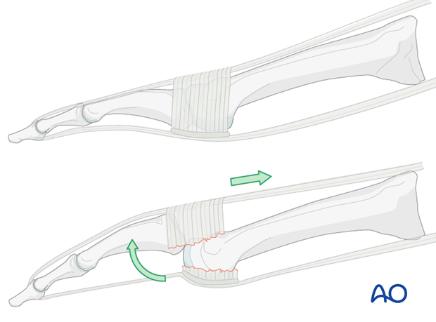 As a result of the dorsiflexing force the sling which connects the dorsal hood of the joint with the plantar plate ruptures and this allows the proximal phalanx to dislocate dorsally.