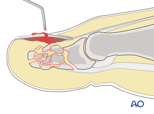 The hematoma can be easily released by perforating the nail bed with a red-hot needle, or paperclip.