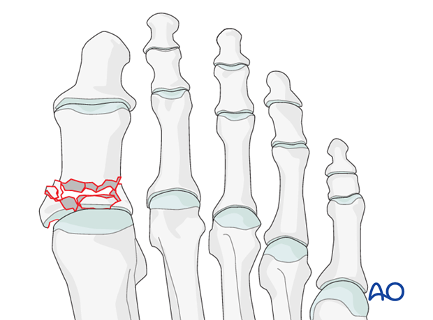 Hallux - Base, intraarticular, comminuted