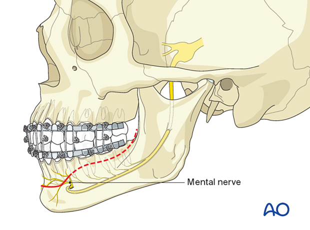 The course of the mental nerve vs the incision line