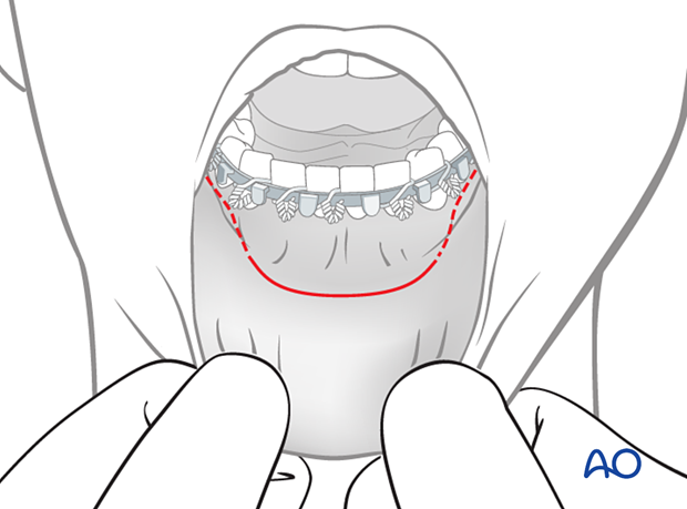 The incision is made through the mucosa in the vestibule