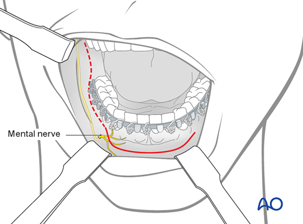 The transoral approach is the usual access for simple fractures of the body, symphysis, and angle regions.