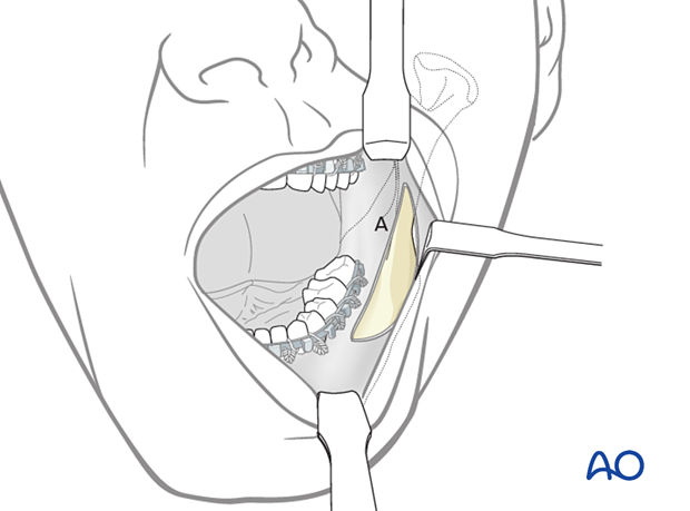 Make an incision through the mucosa in the vestibule