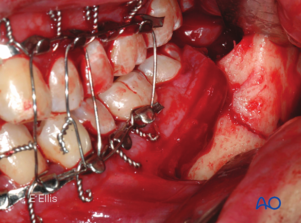 This clinical image shows the fracture exposed, reduced, and MMF secured