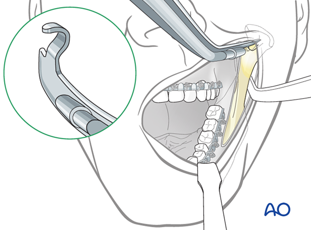 The fixation can be done either by transbuccal or right-angled instrumentation