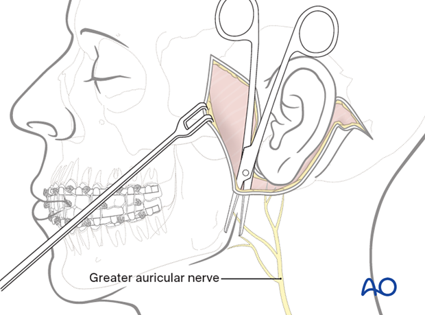 A skin flap is elevated in the subcutaneous plane