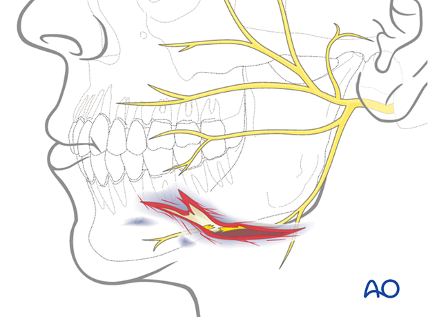 Involvement of the facial nerve