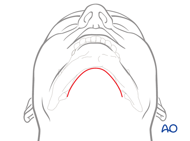 Incision lines for extended appraoch
