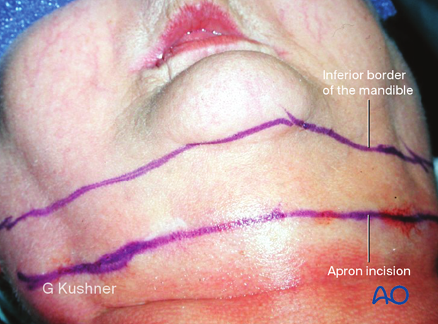 The inferior border of the mandible is marked along with the planned skin incision