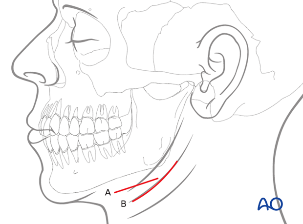 The incision can either be parallel to the inferior border of the mandible (A) or be placed in an existing skin crease (B) for maximum cosmetic benefit