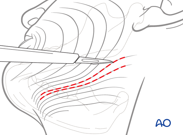 If using skin creases for the incision the orientation of the scalpel blade is parallel to the relaxed skin tension lines