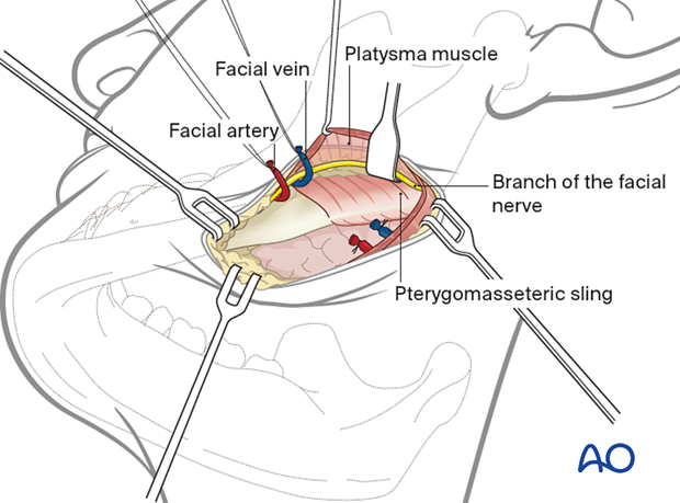 Ligation of facial artery and vein