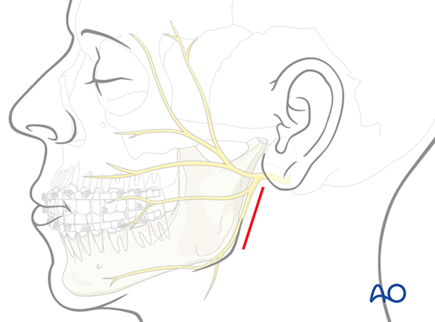 The main anatomic structures in this approach are the main trunk and branches of the facial nerve and the retromandibular vein