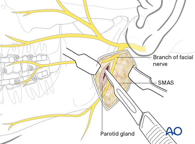 Vertical incision into the parotid gland