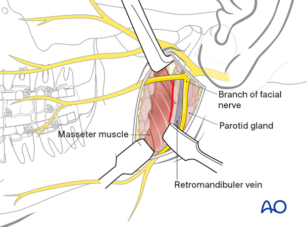 Dissection of the parotid gland parallel to the direction of the facial nerve branches