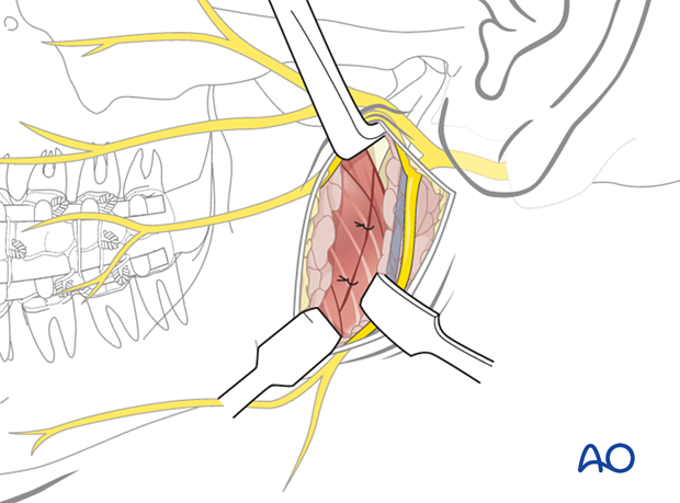 The wound is reapproximated in layers for anatomic realignment and avoidance of dead space