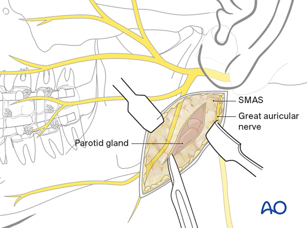 The posterior aspect of the parotid gland is identified, and dissection continues behind the gland