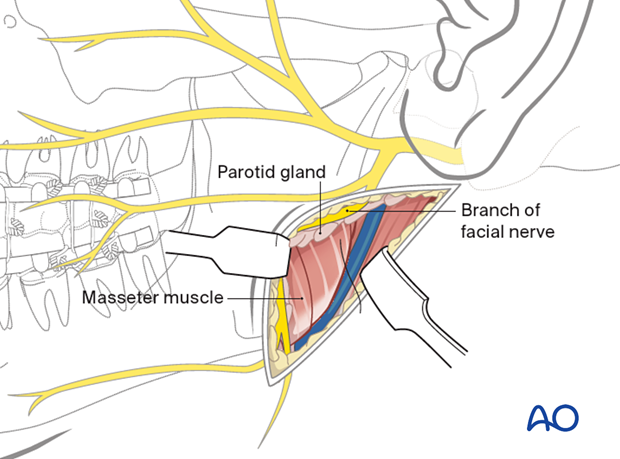 The gland is lifted off the masseter muscle and retracted anteriorly