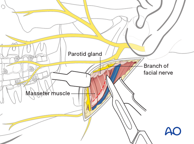 Incision through the pterygomasseteric sling