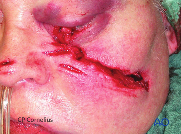 Soft-tissue laceration after a chain saw injury