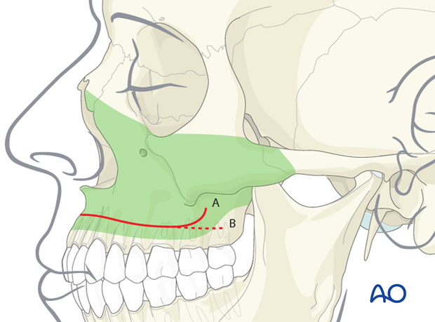 buccal sulcus approach