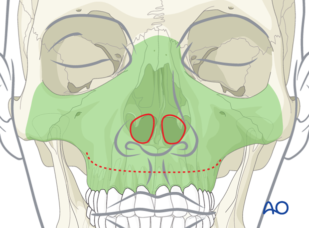 Approaches to the maxilla