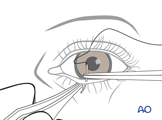 Transcutaneous lower-eyelid approach